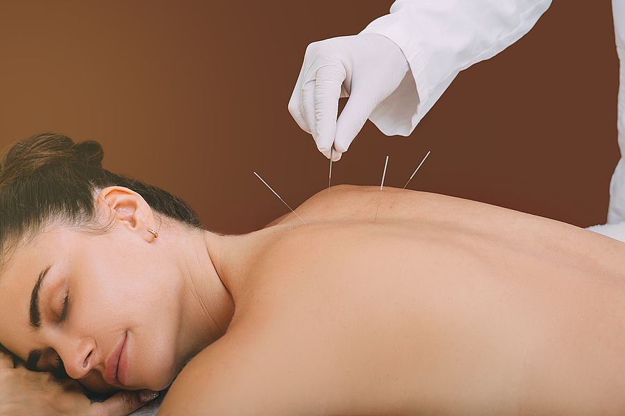 Acupunturist hand with acupuncture needle in the back of a woman